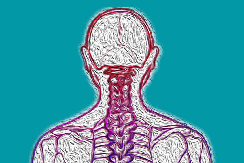 Hernia cervical e cranio